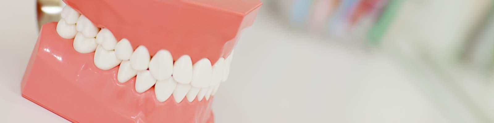 小石歯科 | インプラント